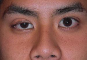 Olho com ptose (pálpebra caída)